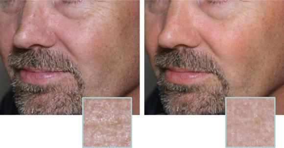 Improvements in skin texture