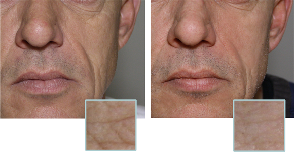 Reduces the appearance of lines & Wrinkles