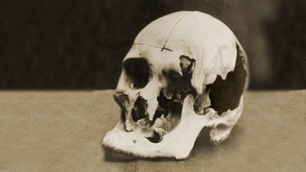 Andrew Skull
