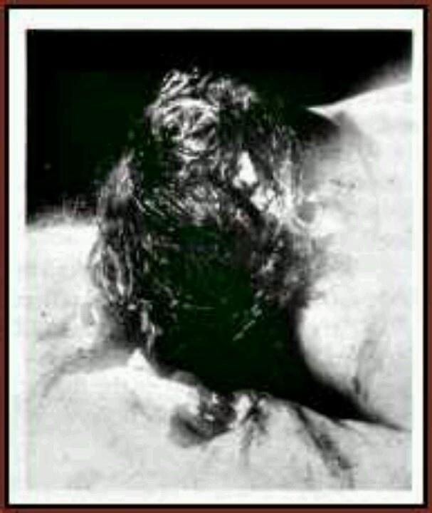 abby autopsy.jpg