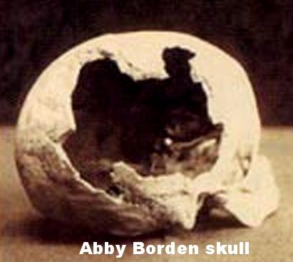Abby skull.jpg