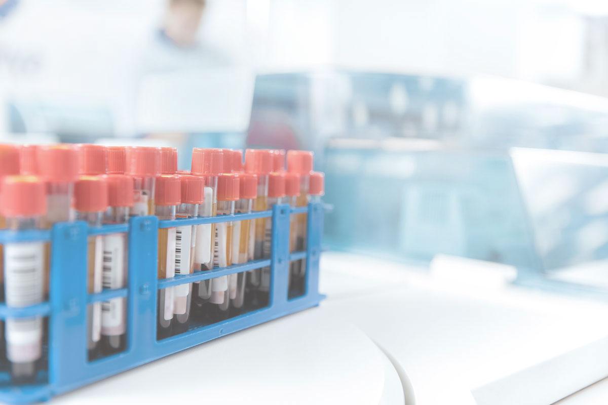 LiquidBiopsy®Workflow   Blood sample to genomic data in 48 hours   Learn More