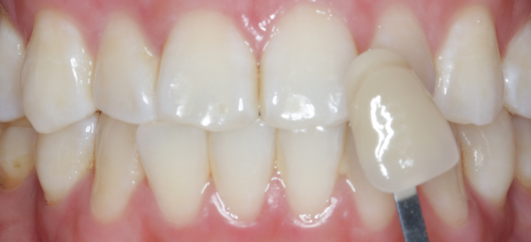 After in-chair whitening and 1 week of take-home whitening.