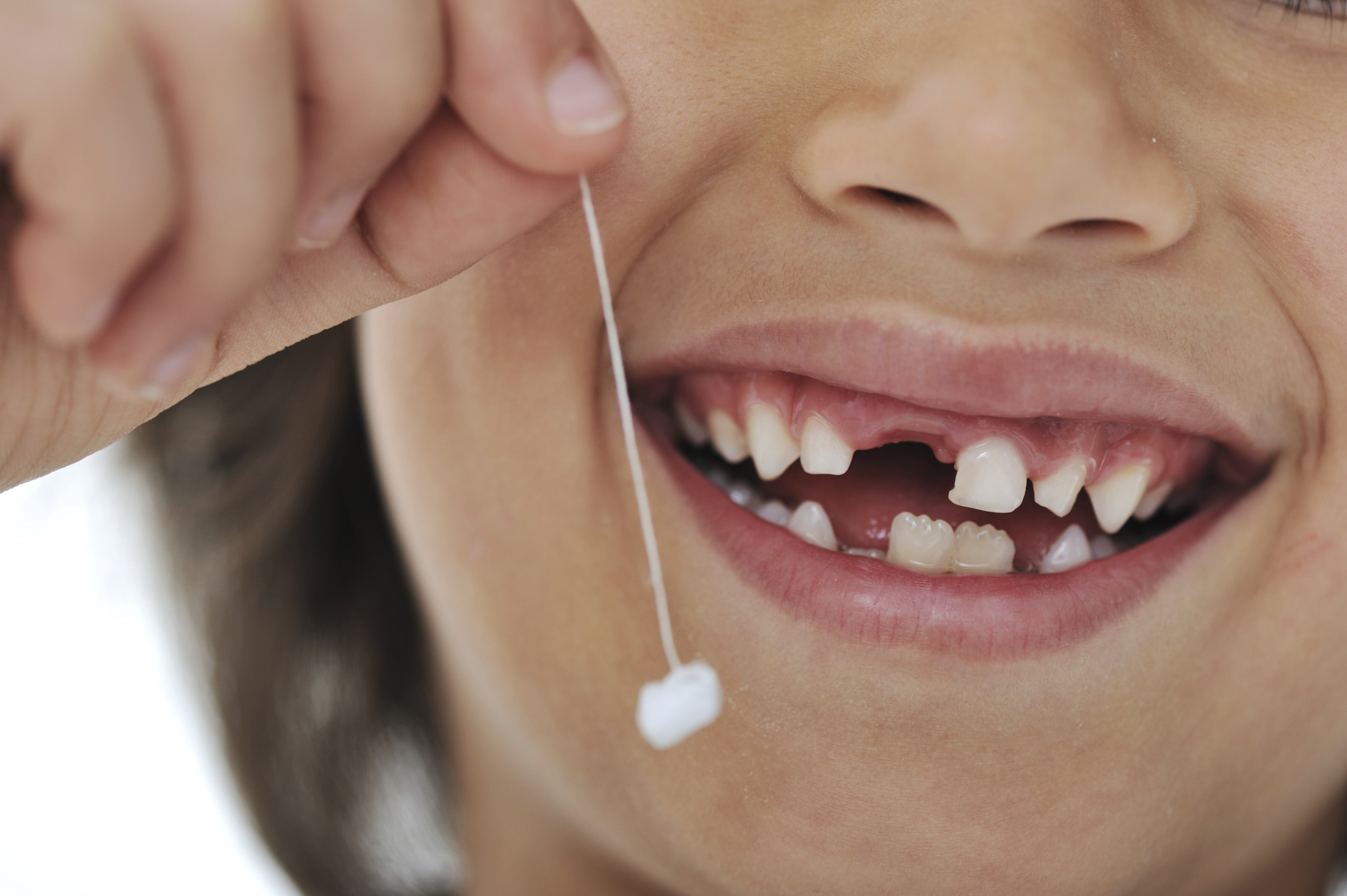 Children are so happy when they successfully remove their own teeth!