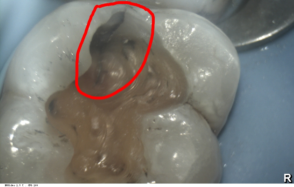 The crack is pretty bad in this tooth. It is really close to the nerve. This is after I had removed an existing amalgam filling.