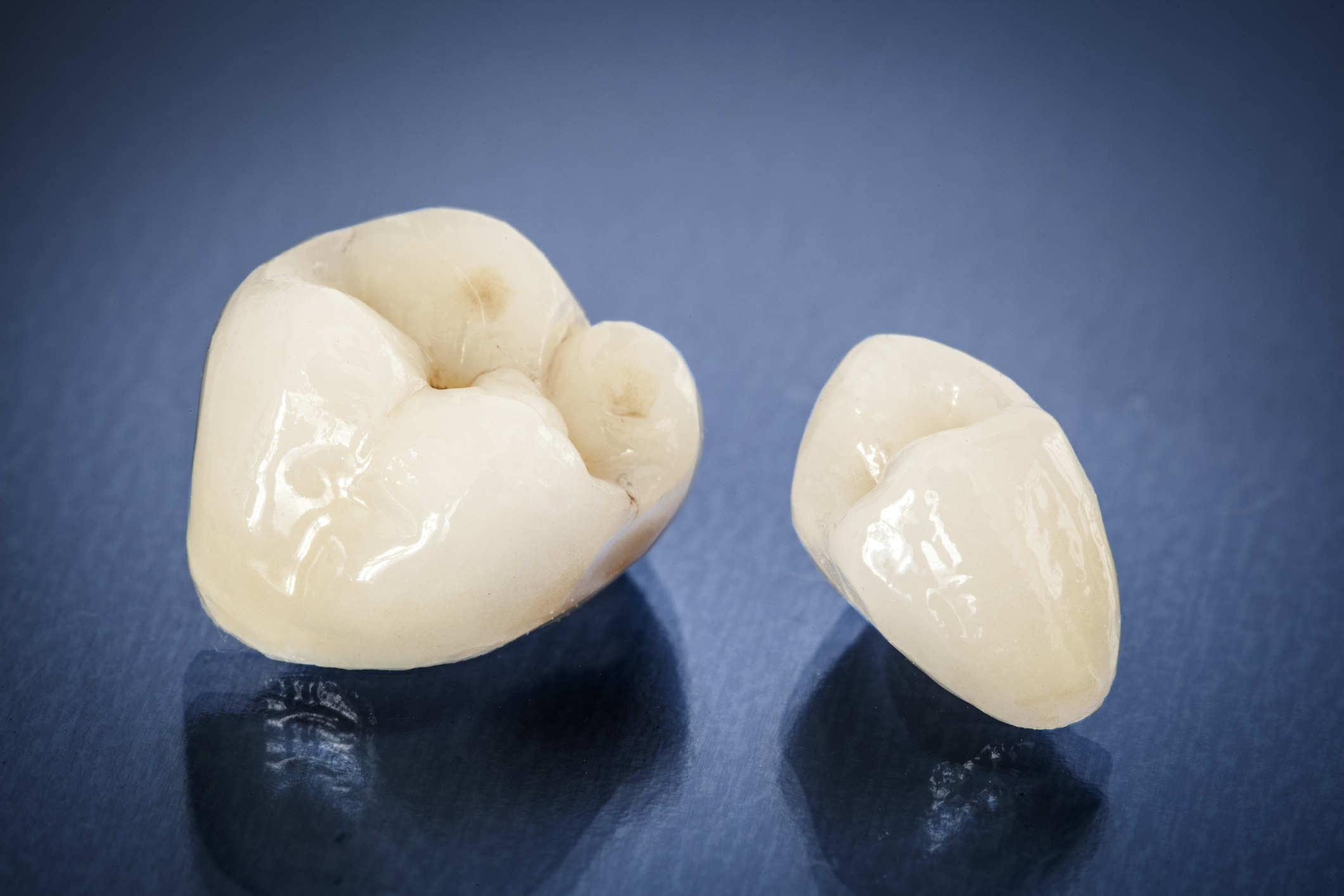 These all ceramic crowns look and feel exactly like natural teeth. Our crowns are made locally by a highly skilled ceramist in Sydney.