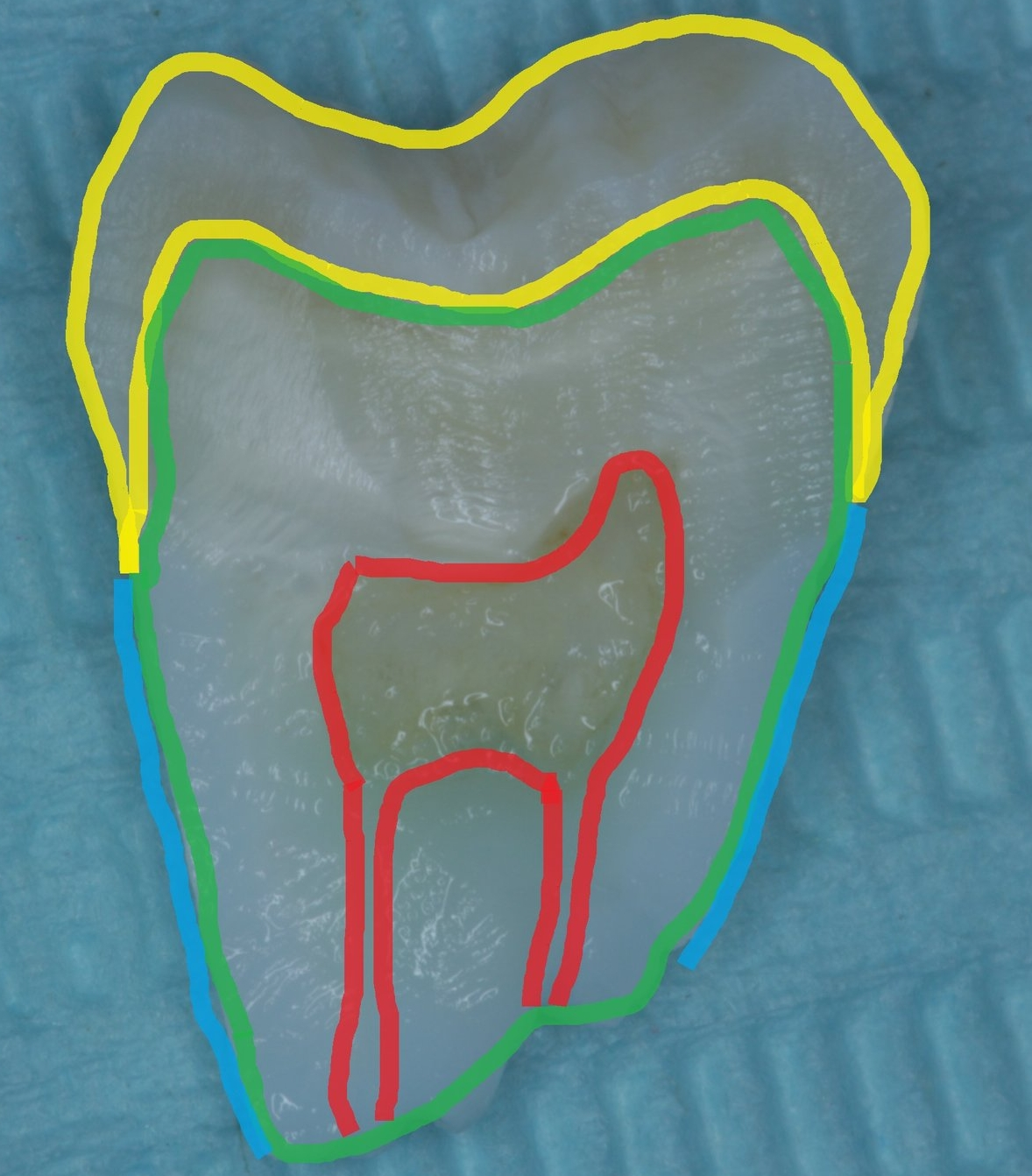 Photo of a tooth sectioned in half with parts of it highlighted to show different parts
