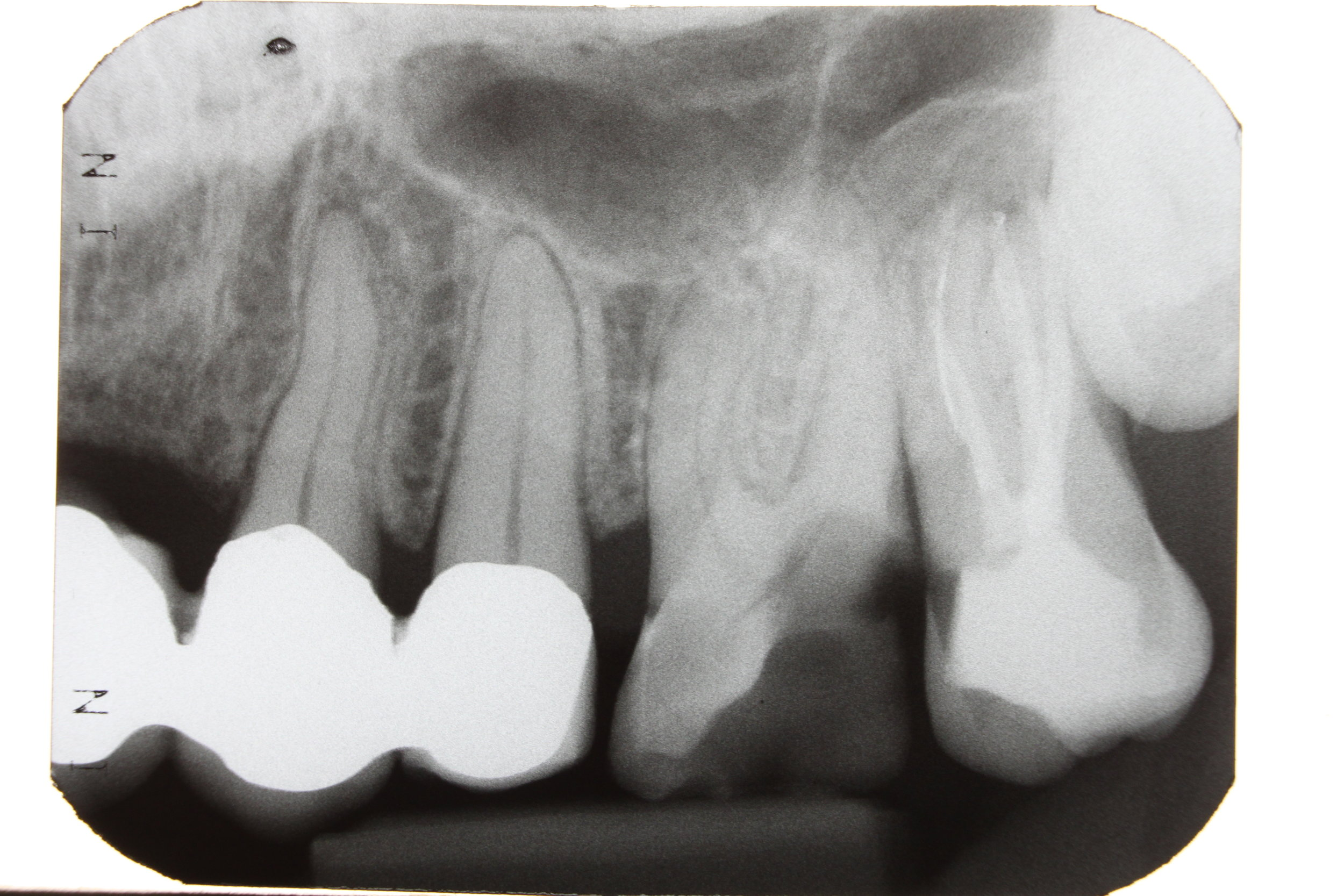 This x-ray shows how deep the decay is and there's a broken file in the root canal! This is just a pic from Wikipedia! Not mine!