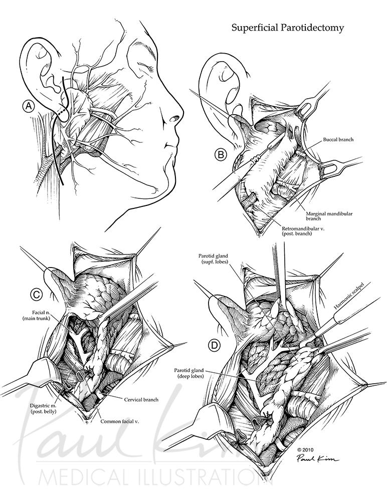 Superficial Parotidectomy
