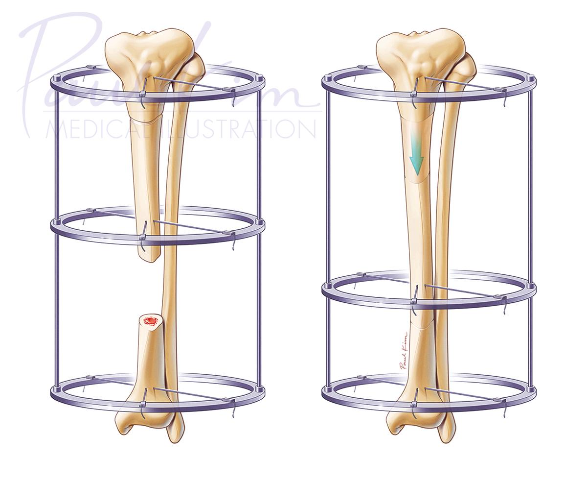 Bone Transport Distraction Osteogenesis