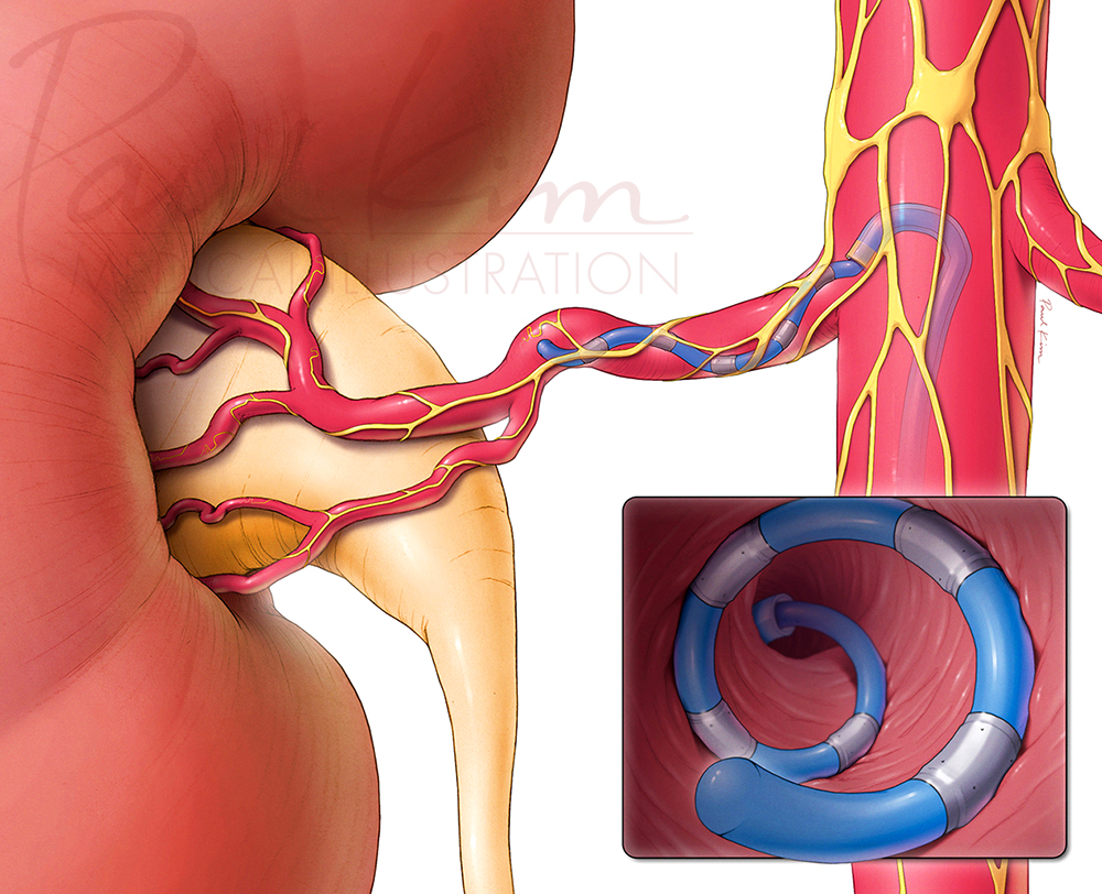 Renal Denervation Catheter
