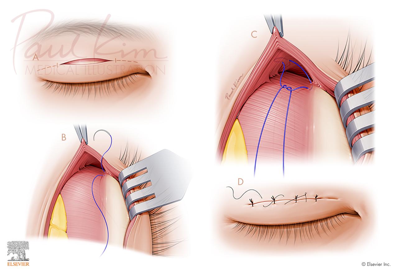 Asian Blepharoplasty - Select Steps