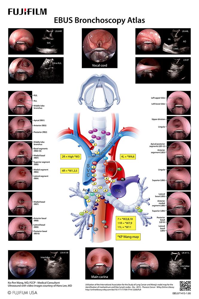 EBUS Bronchoscopy Atlas