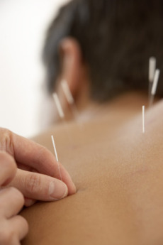 lifestyle-blog-benefits-of-acupuncture-20090415.jpg