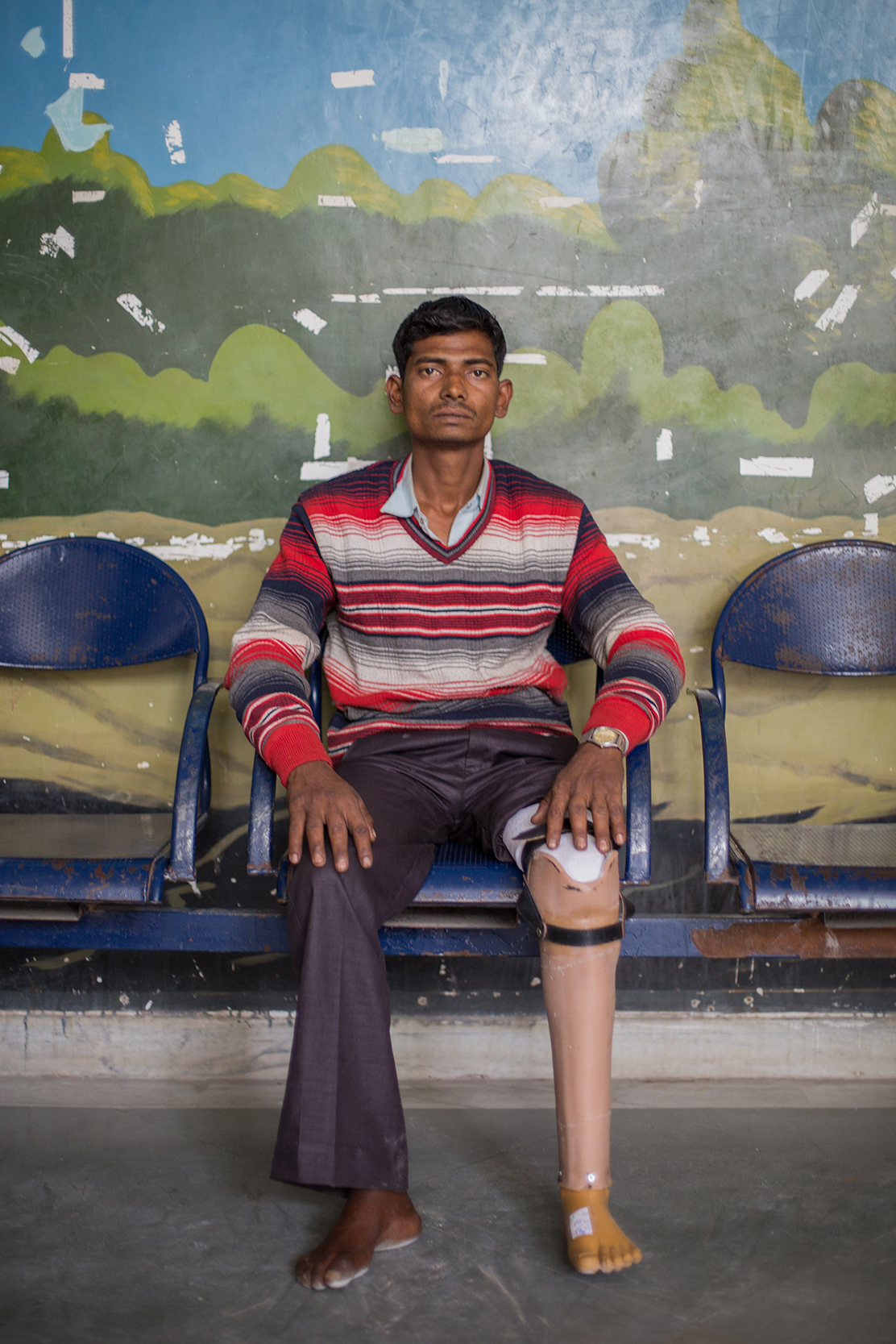 Gopesh was 16 years old when a wall collapsed on his leg, causing him to lose his left limb. This was his first visit to BMVSS seeking a hand-pedaled tricycle for more efficient mobility. Gopesh is 24 years old.