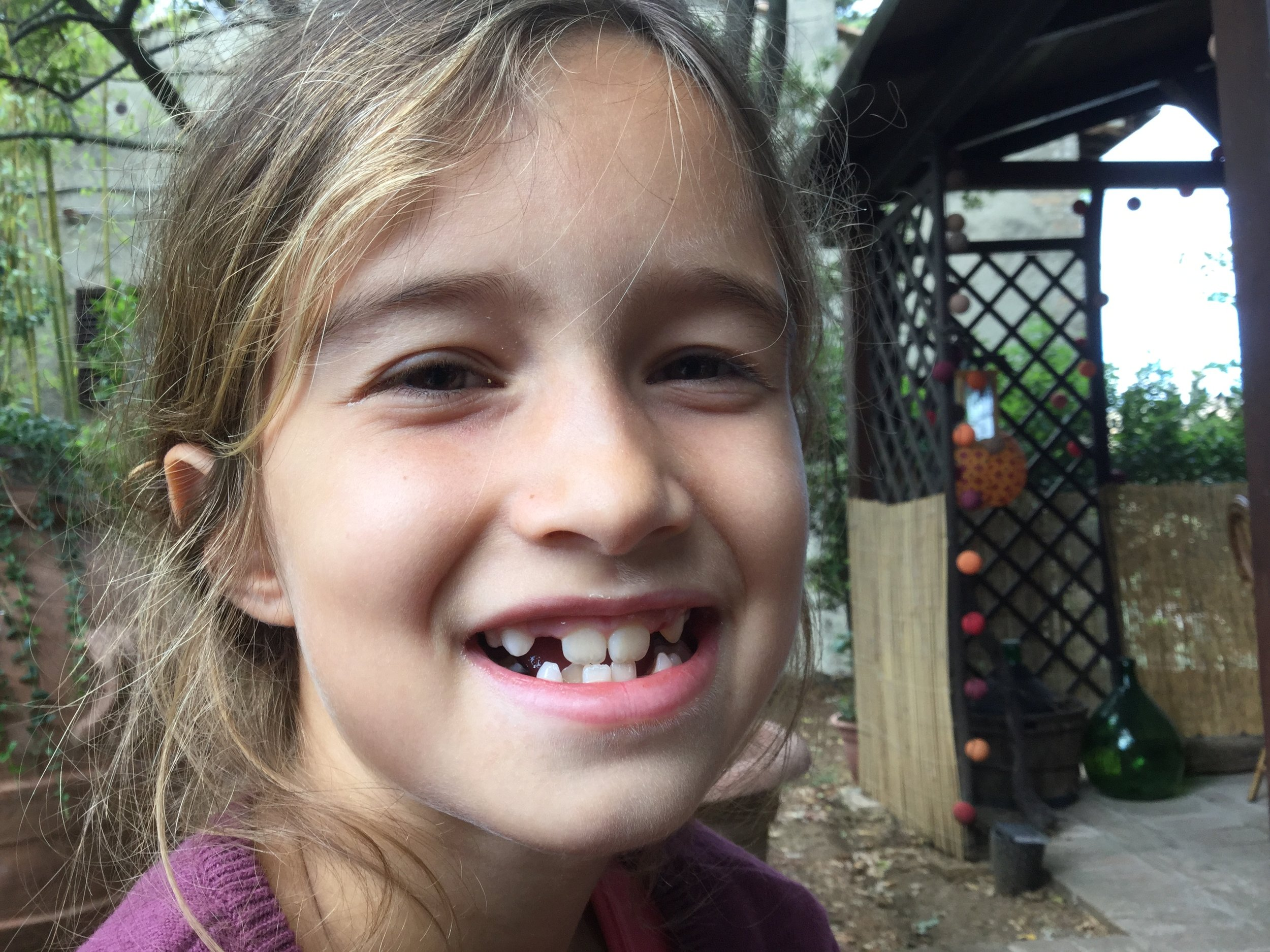 Now I have a tooth...  and now it's out!