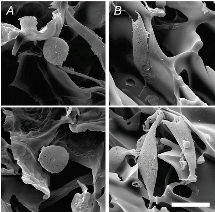 Figure 3. Hydrogels can contain a variety of different pore sizes and biocompatibility features. In (A), an adipose-derived stem cell is imaged under scanning electron microscopy and seen within a N-(2-hydroxypropyl)methacrylamide (HPMA) hydrogel without RGD peptides, which assist in cellular attachment. In (B), RGD peptides have been added, assisting in cellular attachment to the scaffold. From  Golunova et al., 2015 .