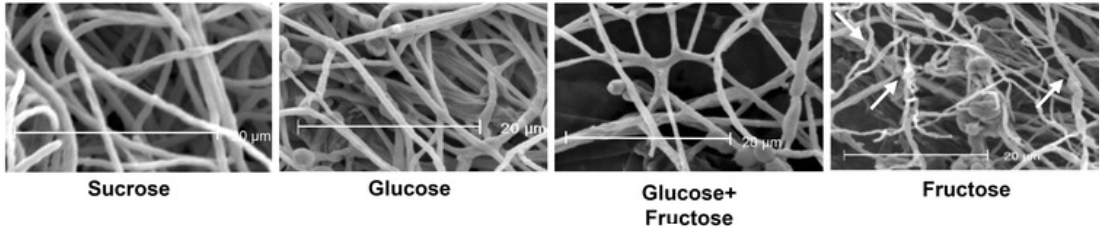 Figure 6. The fungal mycelium provides a natural scaffolding structure for the growth of cells. Shown are scanning electron micrographs of mycelium structures from  P. janczewskii  in response to different sugar sources. From  Pessoni et al., 2015 .