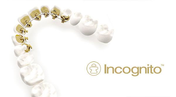 Incognito Zahnspangen sind ideal für Erwachsene, da diese hinter den Zähnen angbracht und somit ganz diskret getragen werden.
