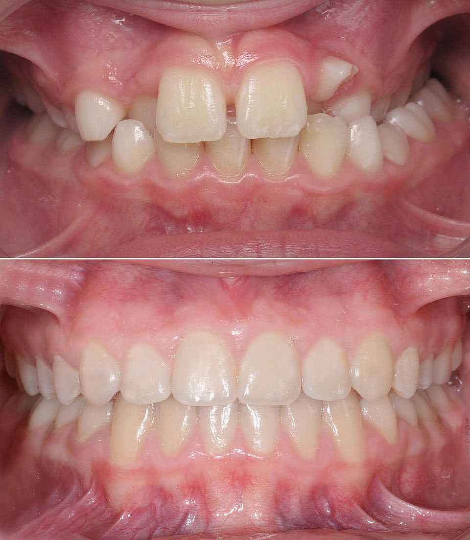 After the successful orthodontic correction of the patient's Crossbite at LAKESIDE ORTHODONTICS in Wädenswil near Zurich.