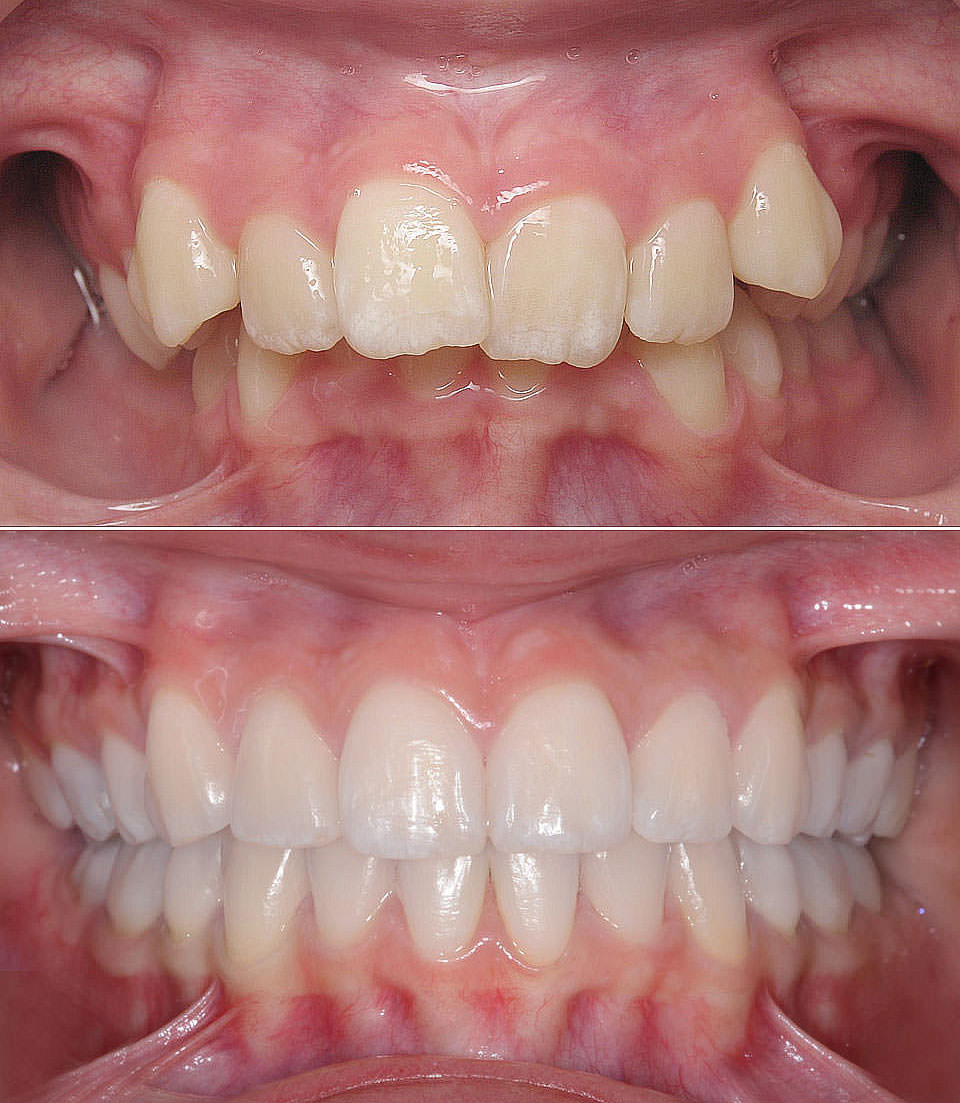 After the successful orthodontic correction of the patient's Deepbite at LAKESIDE ORTHODONTICS in Wädenswil near Zurich.