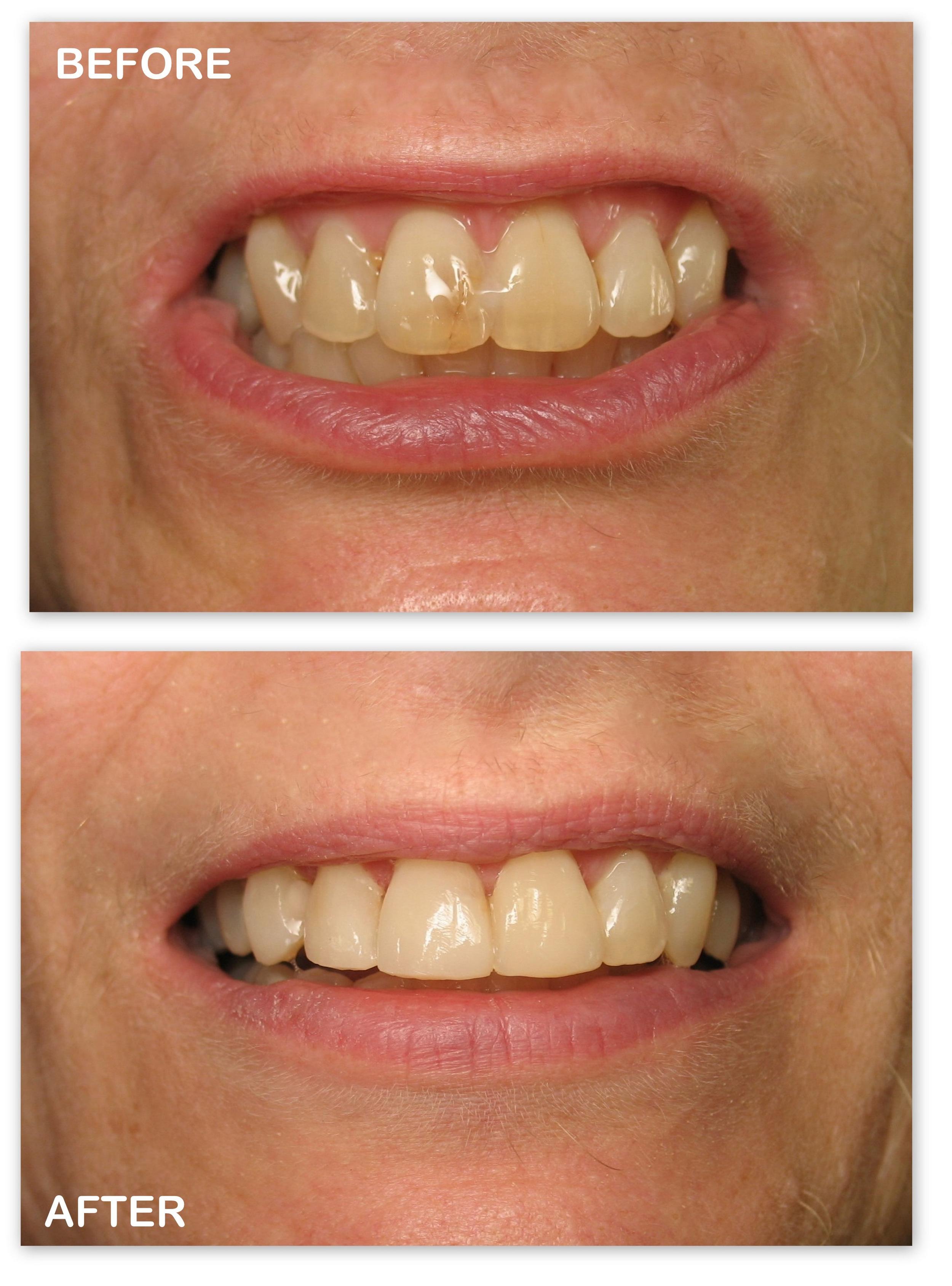 Cos Bdg (To Whiten Teeth) (2).jpg