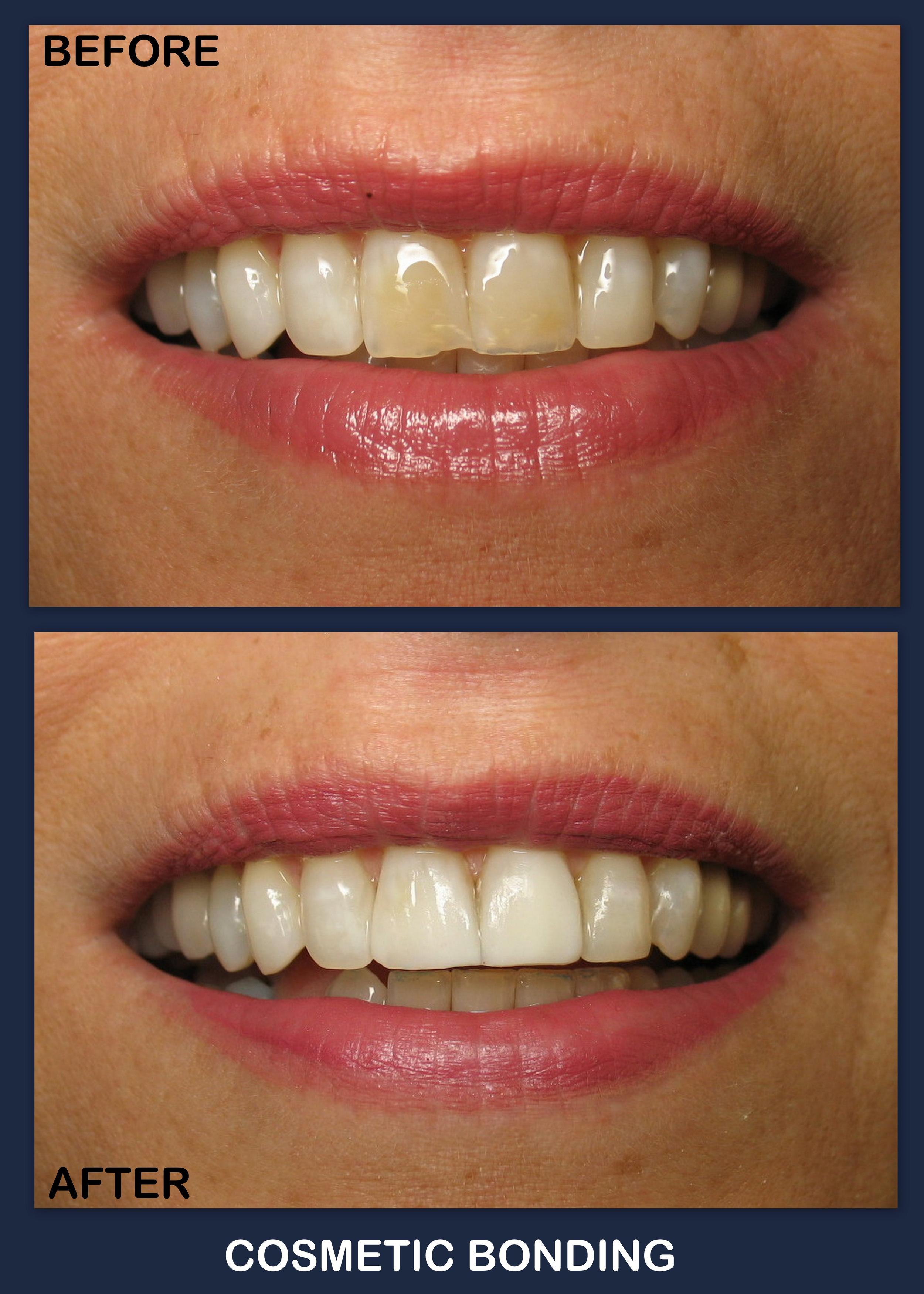 Cos Bdg  (To Whiten teeth).jpg