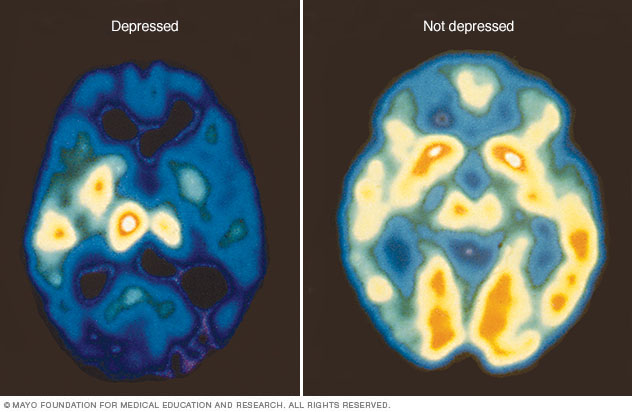 c7_pet_depression-8col.ashx.jpg
