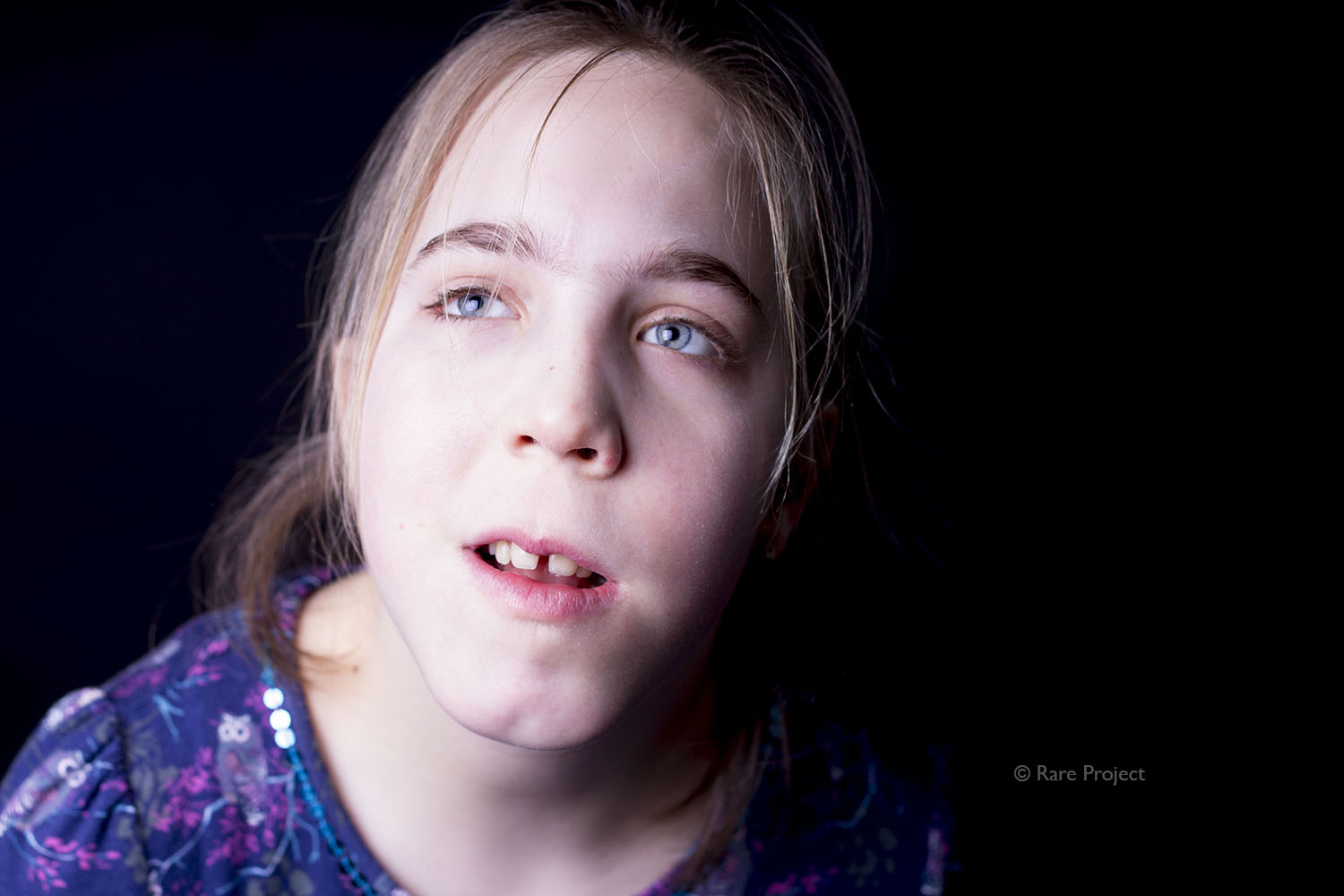 Young lady with Patau syndrome