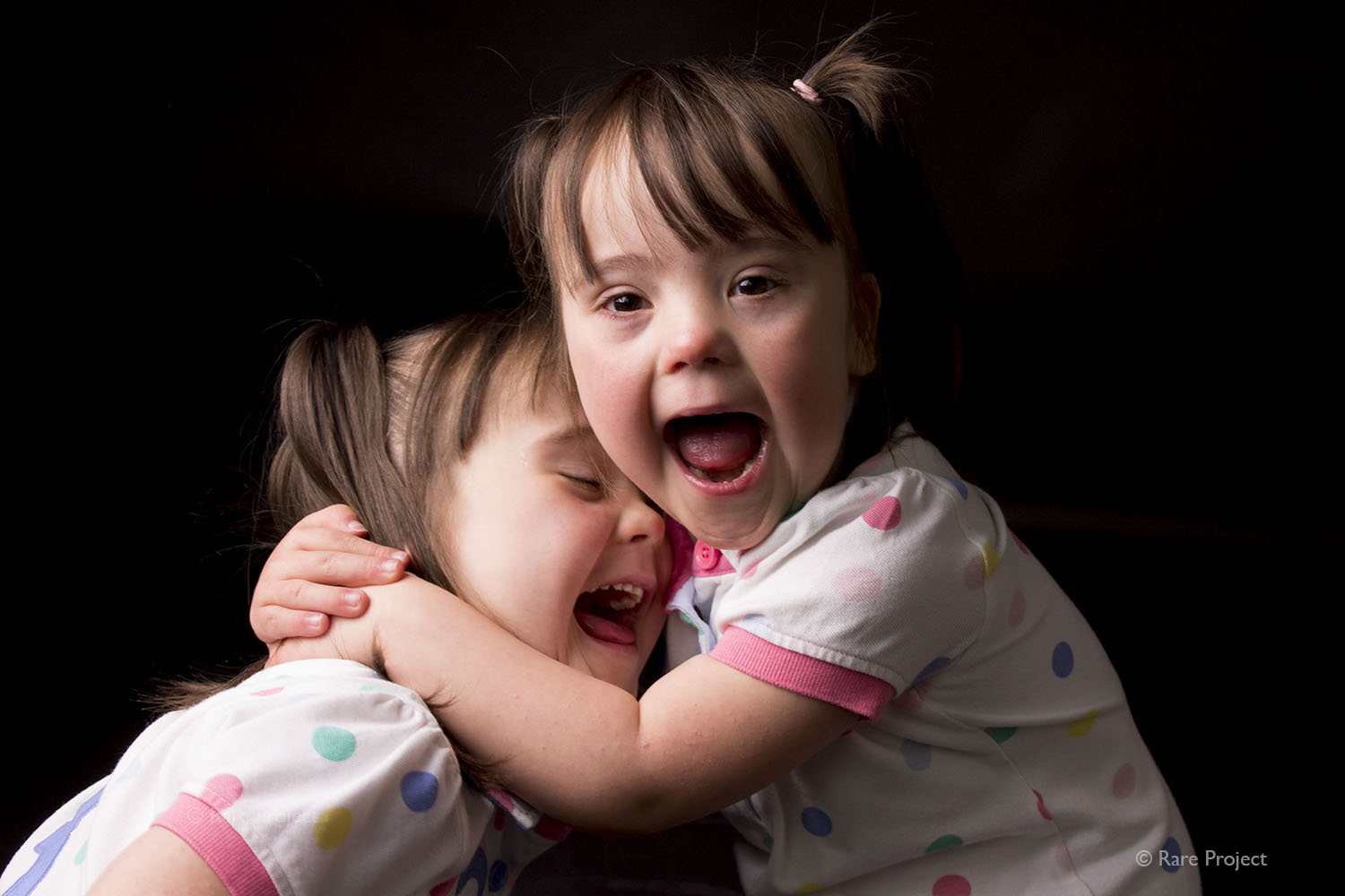 Twins with down's syndrome