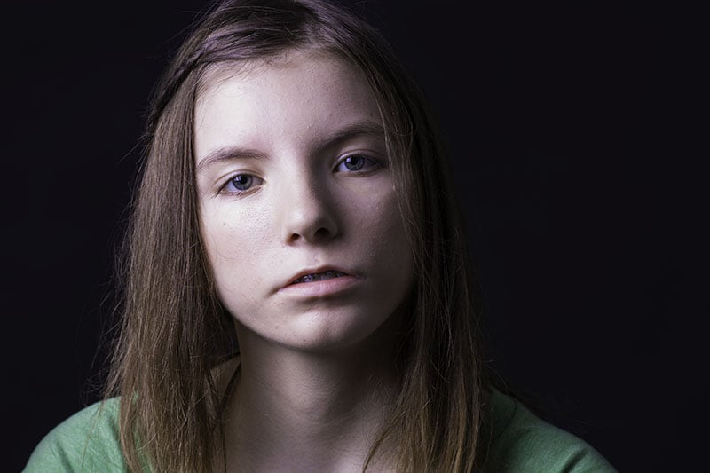 Young lady with Moebius Syndrome