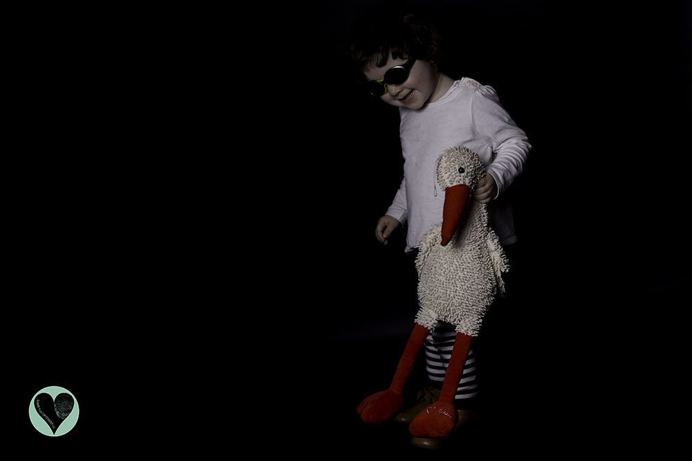 Little girl with abnormality in Adam 17 Gene