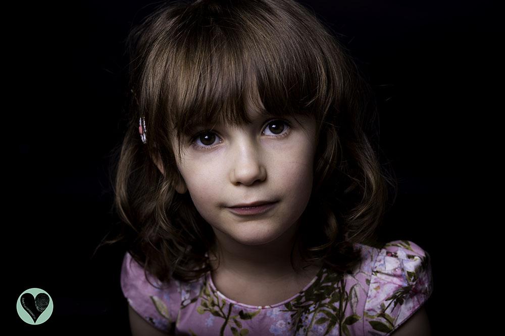 Little girl with Glutaric Aciduria Type 1