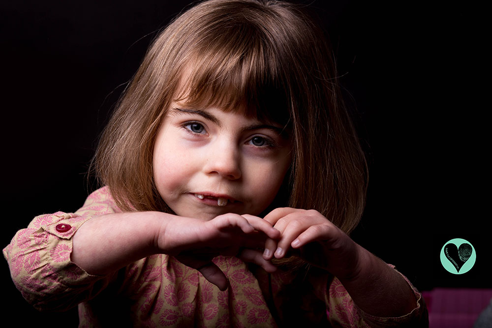 Young girl with Cornelia De Lange syndrome