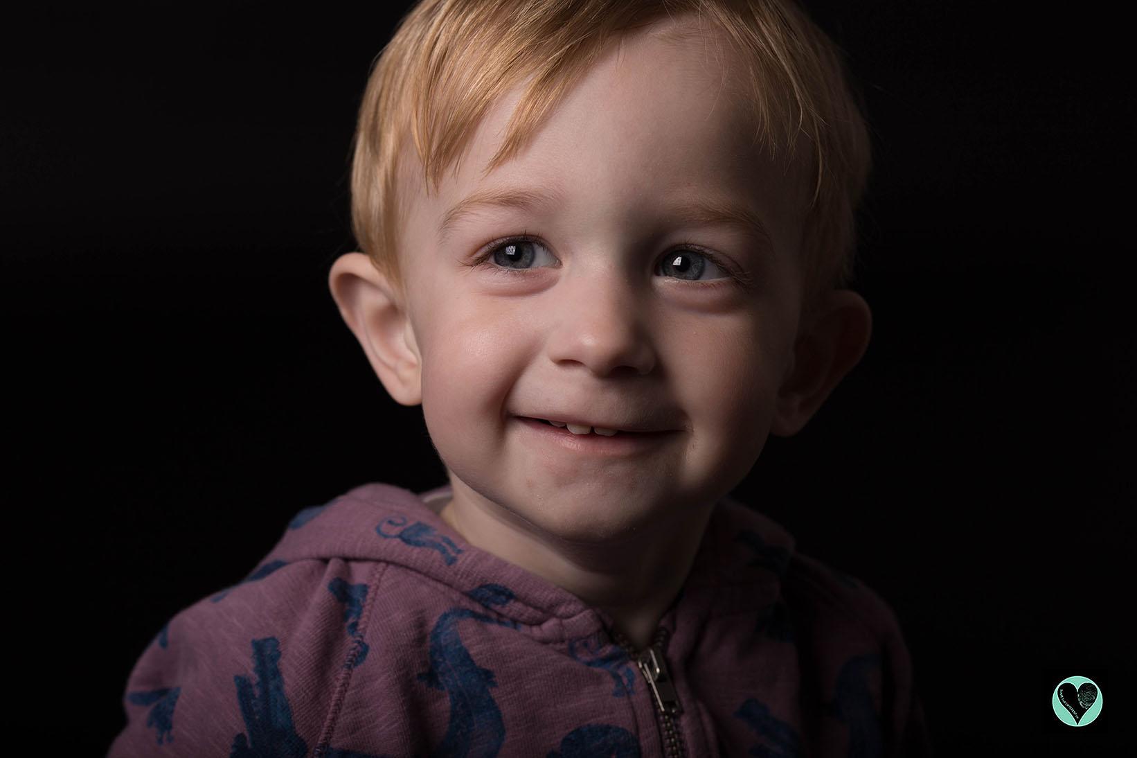 Little boy with hypophosphotasia (HPP)