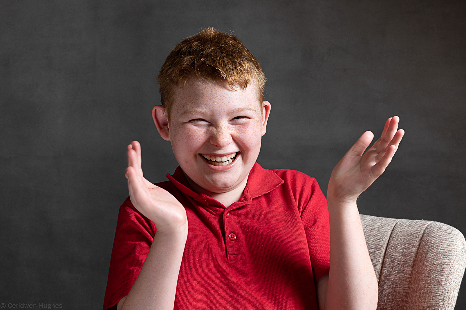 Boy with angelman syndrome