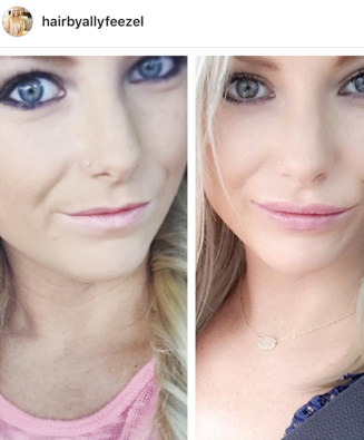 My Lip filler before and after!