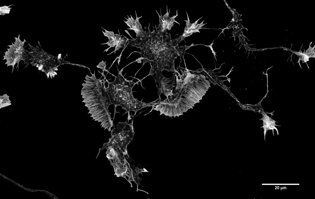 Actin filaments in a mouse Cortical Neuron in culture. Image credit: Howard Vindin ,CC BY-SA 4.0.