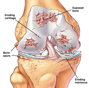 knee.prolotherapy