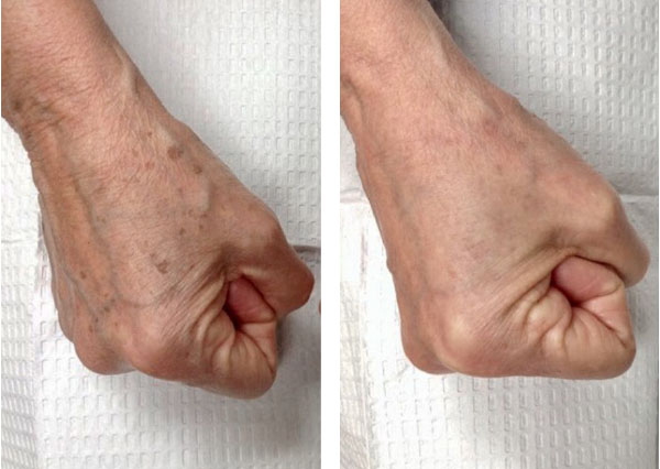Before and After  (unedited photos of an actual River Ridge Dermatology patient. INDIVIDUAL RESULTS MAY VARY.)