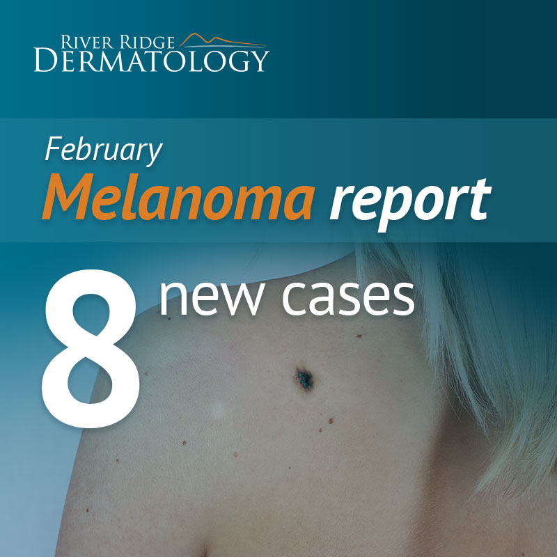 RR_melanoma_image_FEB_170314.jpeg