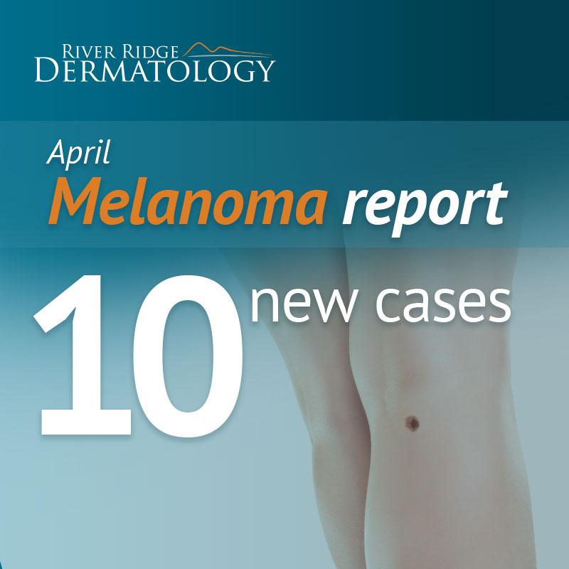 RR_melanoma_image_170518b.jpeg