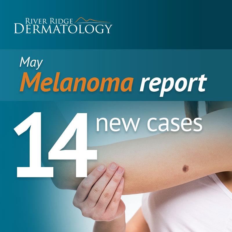 RR_melanoma_image_MAY_170622_UPLOAD.jpeg