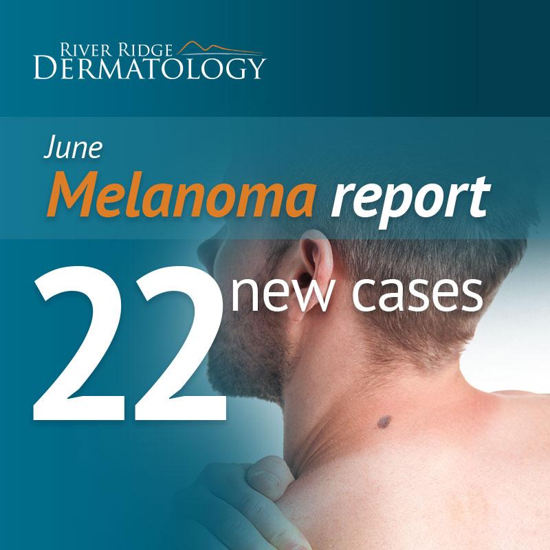 RR_melanoma_image_MAY_170712_upload.jpg