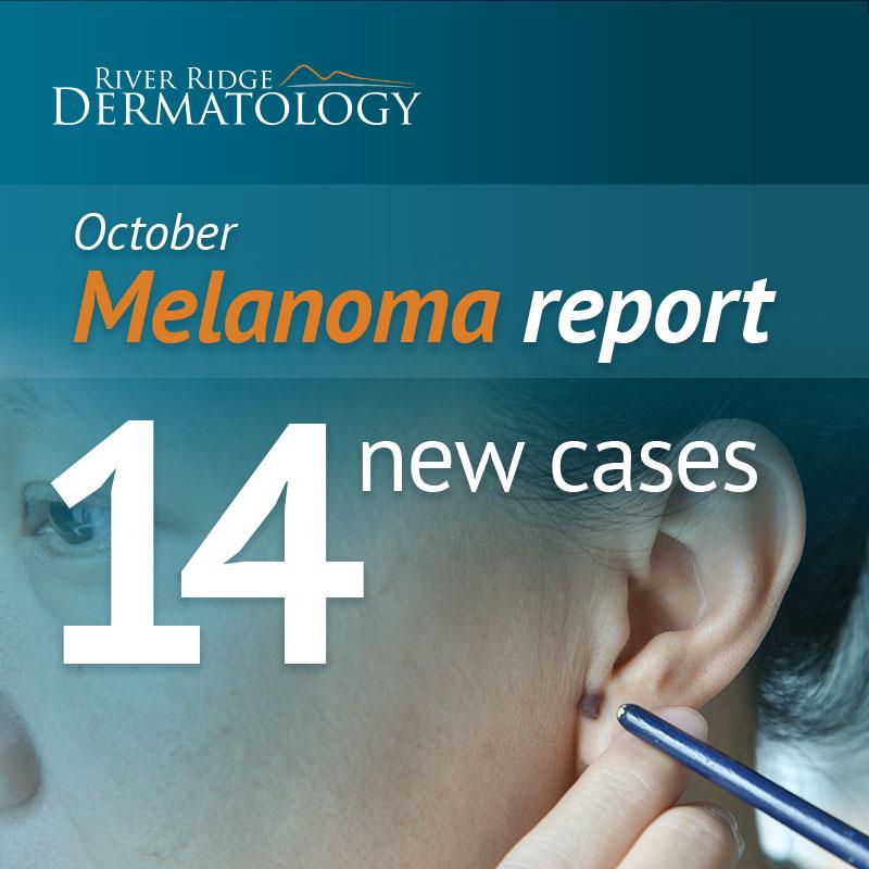 RR_melanoma_image_OCT_171208_dr1b.jpg