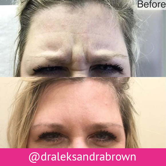 Before and after: injectable treatment on a patient's face. (Unedited photos of an actual River Ridge Dermatology patient. Individual results may vary.)