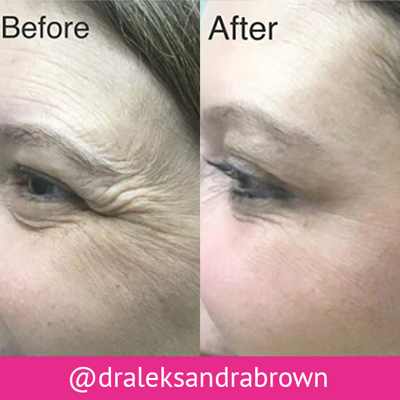 Before and after: BOTOX® treatment on a patient's face. (Unedited photos of an actual River Ridge Dermatology patient. Individual results may vary.)