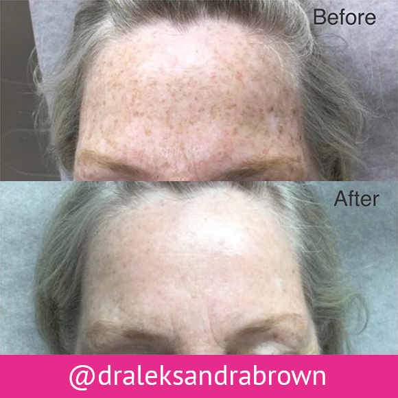 Before and after: chemical peel treatment. (Unedited photos of an actual River Ridge Dermatology patient. Individual results may vary.)