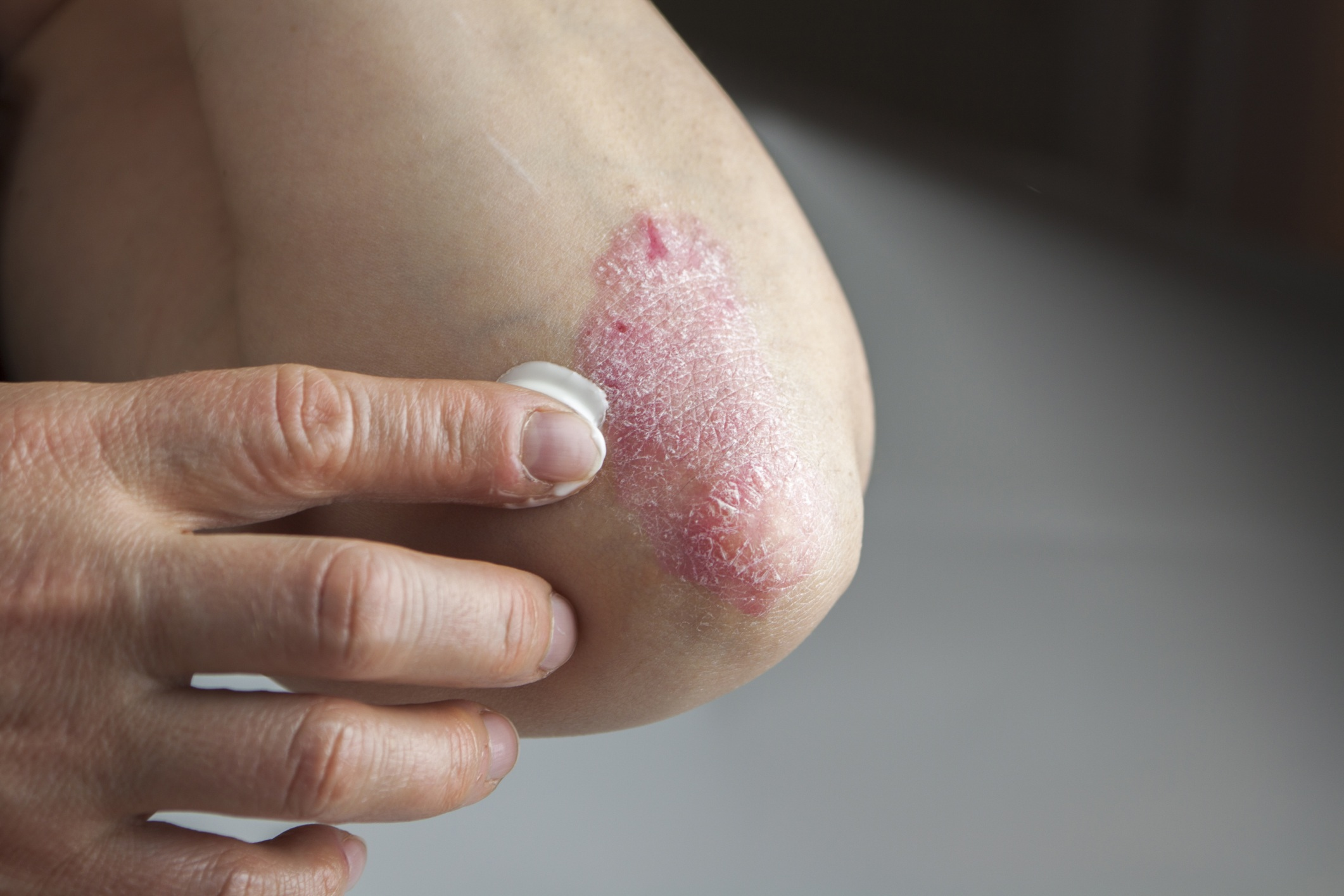 FIND OUT MORE ABOUT MEDICAL DERMATOLOGY