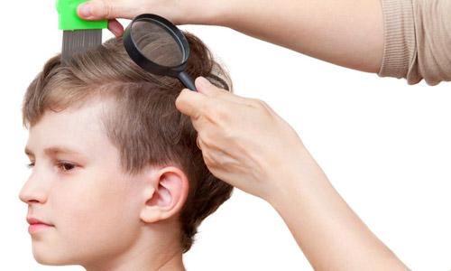 head-lice-symptoms.jpg